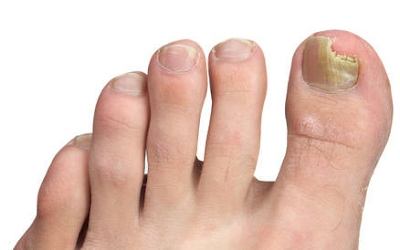 Foot Care Fungal Nail Infections
